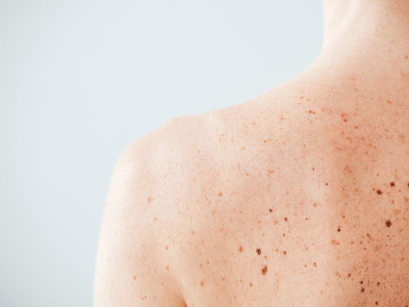melanoma web