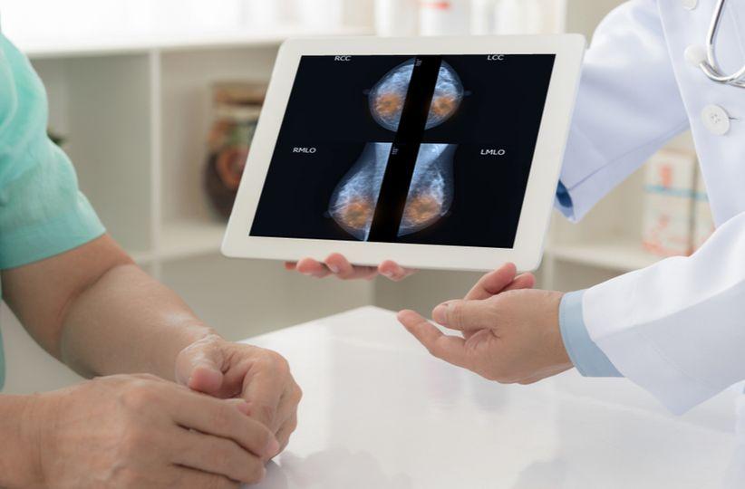 mamografía web