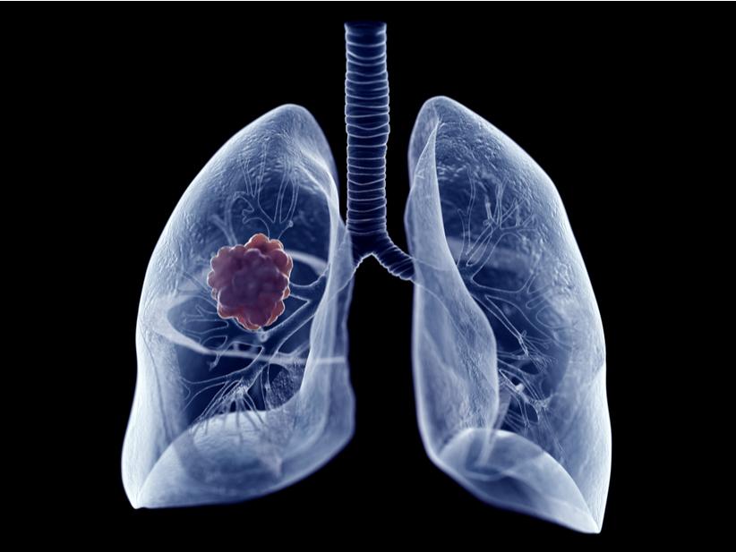 pulmón web